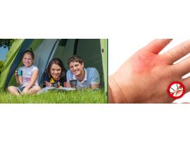 Борба с комари - Уред за лечение на ухапване от комари на най-добра цена