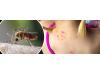 Преносим уред прогонващ комари 2 в 1 с Фенерче GARDIGO - Германия (5) на най-добра цена
